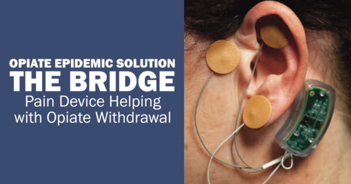 The Bridge device stops opiate withdrawals for 5 days.